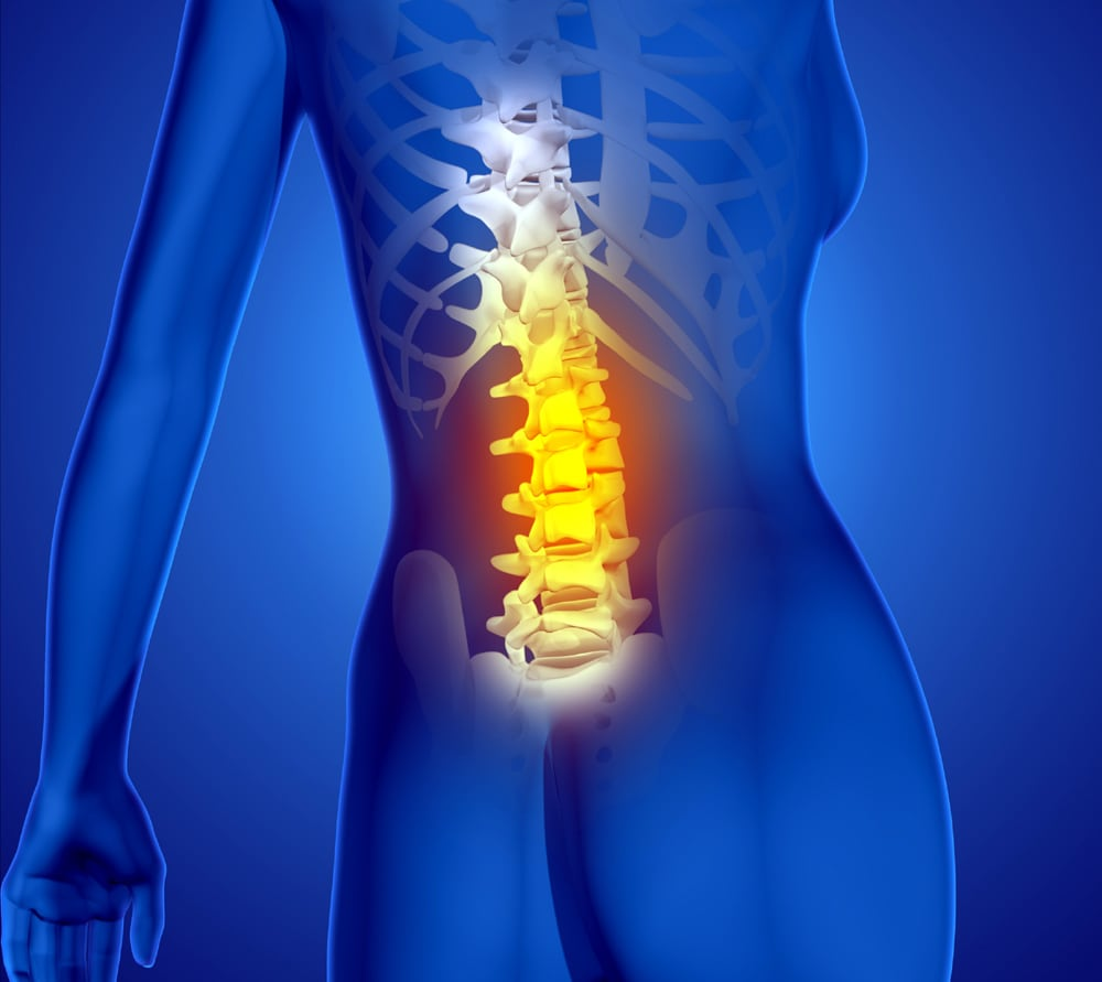 3D render of a female medical figure with spine highlighted